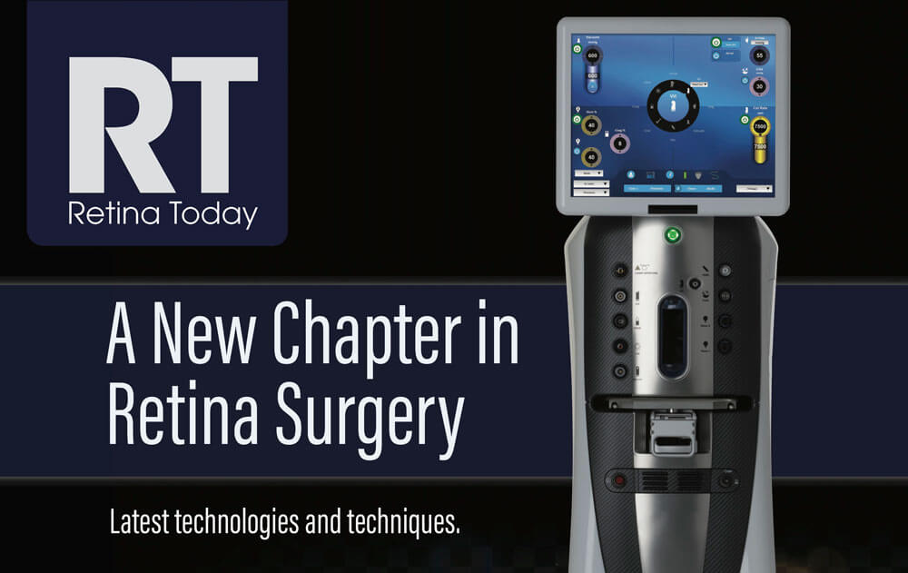 Retina Today  A New Chapter in Retina Surgery   Bausch + Lomb Surgical cb7a8c735c
